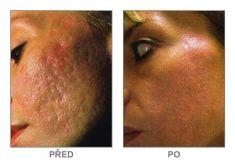 Chemický peeling - Fotka pred - Klinika YES VISAGE - klinika estetickej medicíny a plastickej chirurgie