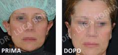 Operazione orecchie (Otoplastica) - Foto del prima - Dr. med. spec. FMH Luca Borra