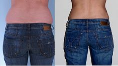 Tumescent liposuction - Photo before - MUDr. Patrik Paulis