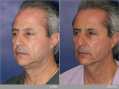 Liposucción de la papada - Foto Antes de - Dr. GiovanniBetti Kraemer