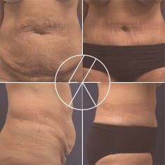Abdominoplasty (Tummy Tucks) - Photo before - MUDr. Lucie Kalinová PhD.