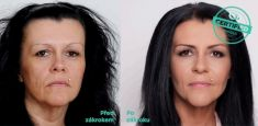 Feather face-lift APTOS - Photo before