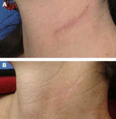Fractional Laser Resurfacing - Photo before - Bieńkowscy Clinic®