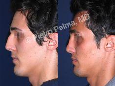Prof. Pietro Palma MD, FACS - Foto del prima - Prof. Pietro Palma MD, FACS