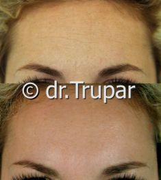 Odstranění vrásek pomocí botulotoxinu - fotka před - MUDr. Evžen Trupar Ph.D.