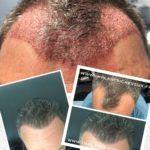 Dr AMAT - Micro-greffe cheveux FUE 2.0 - Cliché avant - Dr AMAT - Micro-greffe cheveux FUE 2.0