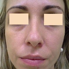 Plastika nosu (Rhinoplastika) - fotka před - OB Care
