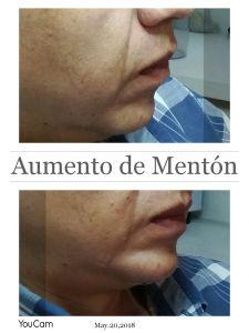 Implantes faciales - Foto Antes de - Dra Pamela Galarza