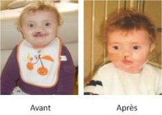 Cleft palate surgery (palatorrhaphy) - Photo before - Dr Gérald Franchi MD