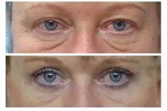 Operace očních víček (Blefaroplastika) - ŽENA, 51 LET, PLASTICKÁ OPERACE HORNÍCH A DOLNÍCH VÍČEK