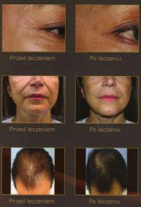 Mezoterapia igłowa - odmładzanie twarzy, szyi, dekoltu, dłoni - Zdjęcie przed