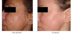 Chemical peeling - Photo before - Laserová dermatologická klinika ALTOS
