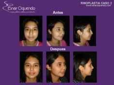 Cirugía de la nariz (Rinoplastia) - Foto Antes de - Dr. Einar Fernando Oquendo Villacres