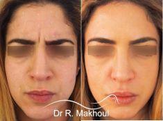 Dr Rani Makhoul - Traitement des rides verticales de la glabelle (rides du lion).