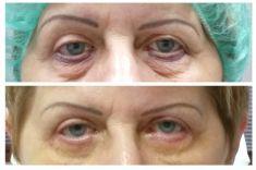 Operace očních víček (Blefaroplastika) - ŽENA, 58 LET, PLASTICKÁ OPERACE HORNÍCH A DOLNÍCH VÍČEK