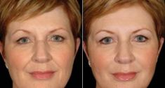 Mésothérapie, regénération du visage et du cou - Cliché avant - Dr Franck Benhamou