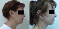 Подтяжка лица (Ритидэктомия) - Фотографии до - врaч Павел Андреевич Денищук