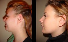 Liposuction - Photo before - Be Clinic