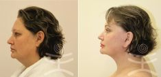 Face lift – Gold Threads - Photo before - Mediestetik, skupina klinik