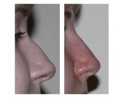 Korekta nosa kwasem hialuronowym - Zdjęcie przed