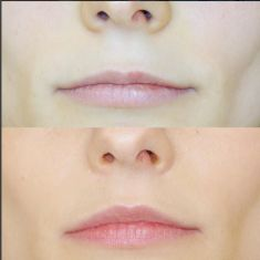Dr Osuch Clinic - The Bullhorn lip lift - this technique is the most popular among celebrities, regardless of age. This type of facelift allows you to reduce the distance between the upper lip and the base of the nose, and visibly shape and enlarge the lips. The incision during the procedure is performed at the base of the nose, which results in a delicate scar that fades with time and becomes almost invisible to the eye.