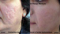 Enlèvement des verrues et acrochordons - comblements de toutes les cicatrices par acide hyaluronique, combinée à de la mésothérapie profonde par skin-booster afin de finir le lissage la peau