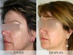 El tratamiento con luz pulsada intensa (IPL)  - Foto Antes de - Clínica Planas