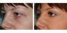 Eyelid surgery (Blepharoplasty) - Photo before - Violeta Skorobać Asanin MD, PhD