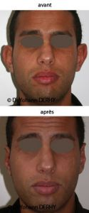 Otoplastie (Chirurgie esthétique des oreilles) - Cliché avant - Dr Yohann Derhy
