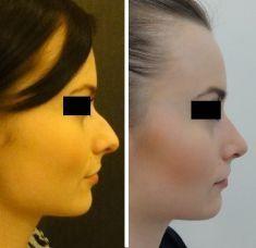 Korekcja nosa (Operacja nosa) - Zdjęcie przed - SCM Estetic