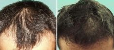 Przeszczep włosów - transplatacja włosów - Zdjęcie przed - Dr Szczyt Klinika Chirurgii Plastycznej