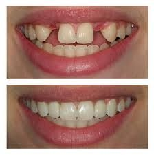 Dental implants - Photo before