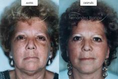 Dr. Alfredo Fernández Blanco - Lifting cervicofacial