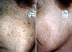 Tattoo removal - Photo before - Klinika ELITE - Centrum Laseroterapii