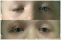Korekcja powiek (Blepharoplastyka) - Zdjęcie przed - dr n. med. Tomasz Dębski