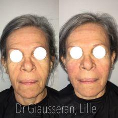 Lifting du visage - Cliché avant - Dr Fabien Giausseran