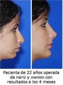 Dr. Eduardo Luevano Gonzalez - Foto Antes de - Dr. Eduardo Luevano Gonzalez