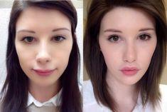 Lip Lift - Photo before - ClinicForYou