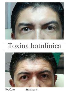 Botox/Dysport - Eliminar arrugas - Foto Antes de - Dra Pamela Galarza