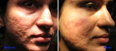 Laser acne treatment - Photo before - Azim Jahangir Khan M.D.