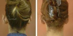 Ear surgery (Otoplasty) - Photo before - Violeta Skorobać Asanin MD, PhD