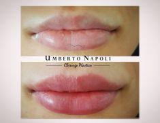 Aumento labbra - trattamento eseguito con filler allergan Volbella della linea juvederm