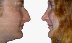 Operácia nosa (Rhinoplastika) - Fotka pred - GÉVÉ Klinika