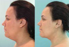 Liposucción de la papada - Foto Antes de - Dr. Boris Henríquez González