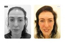 Implante capilar con FUE - Foto Antes de