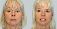 Facelift - Photo before - Be Clinic