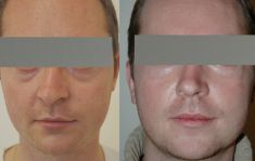 Dr Jacques Buis - Photo before - Dr Jacques Buis