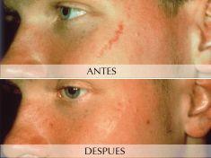 Eliminación de cicatrices con laser - Foto Antes de