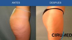 Liposuction - Photo before - Cirumed Clinic