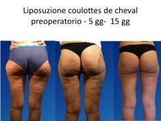Liposuzione - Foto del prima - Dr. Luigi Maria Lapalorcia Specialista in Chirurgia Plastica Ricostruttiva ed Estetica